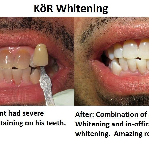Simply Whiter Teeth with KöR Whitening