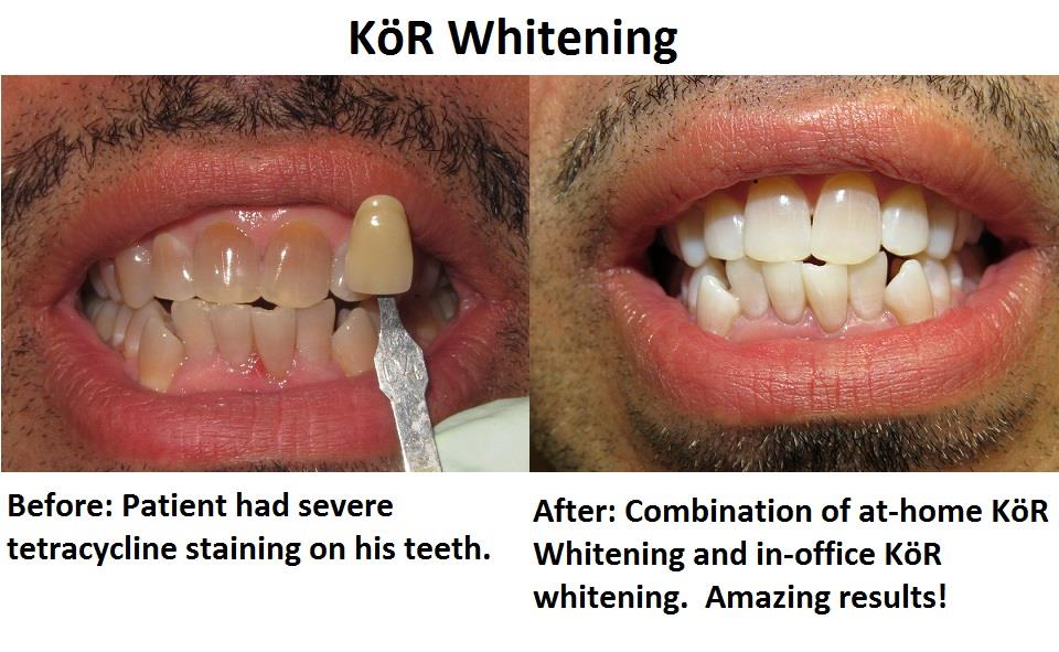 Simply Whiter Teeth With Kor Whitening Caring Smiles Family